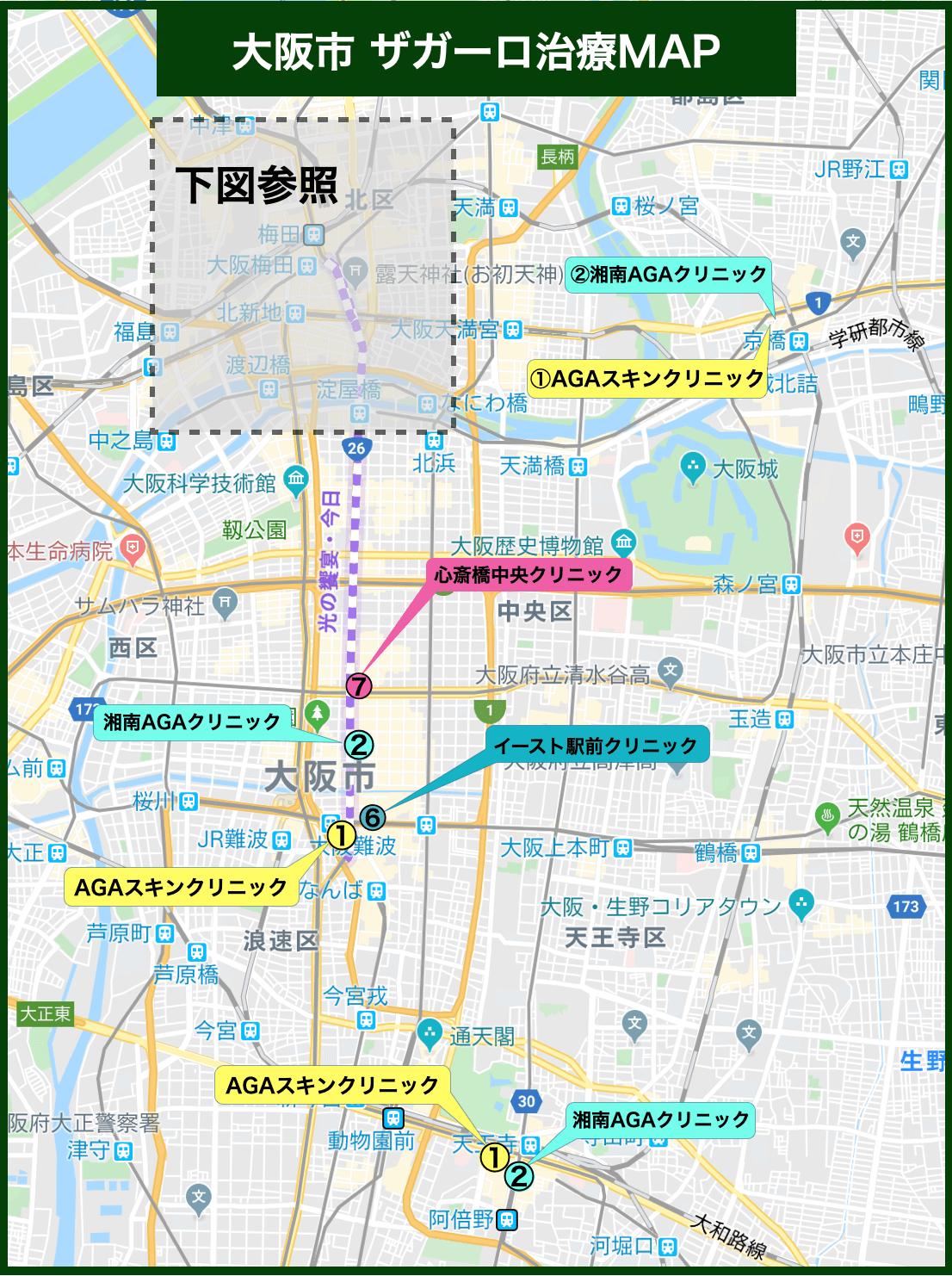 大阪市 ザガーロ治療MAP