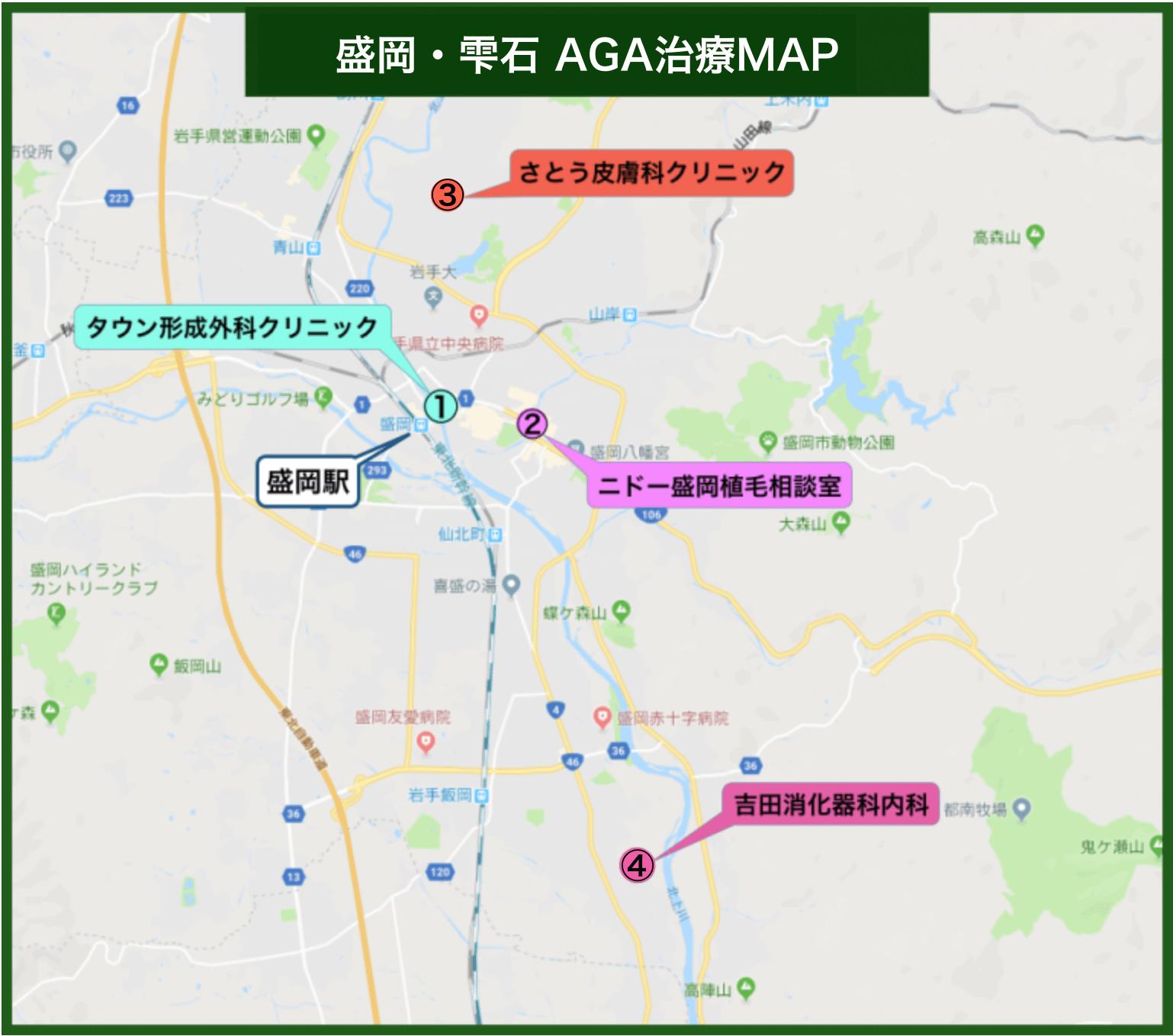 盛岡・雫石 AGA治療MAP