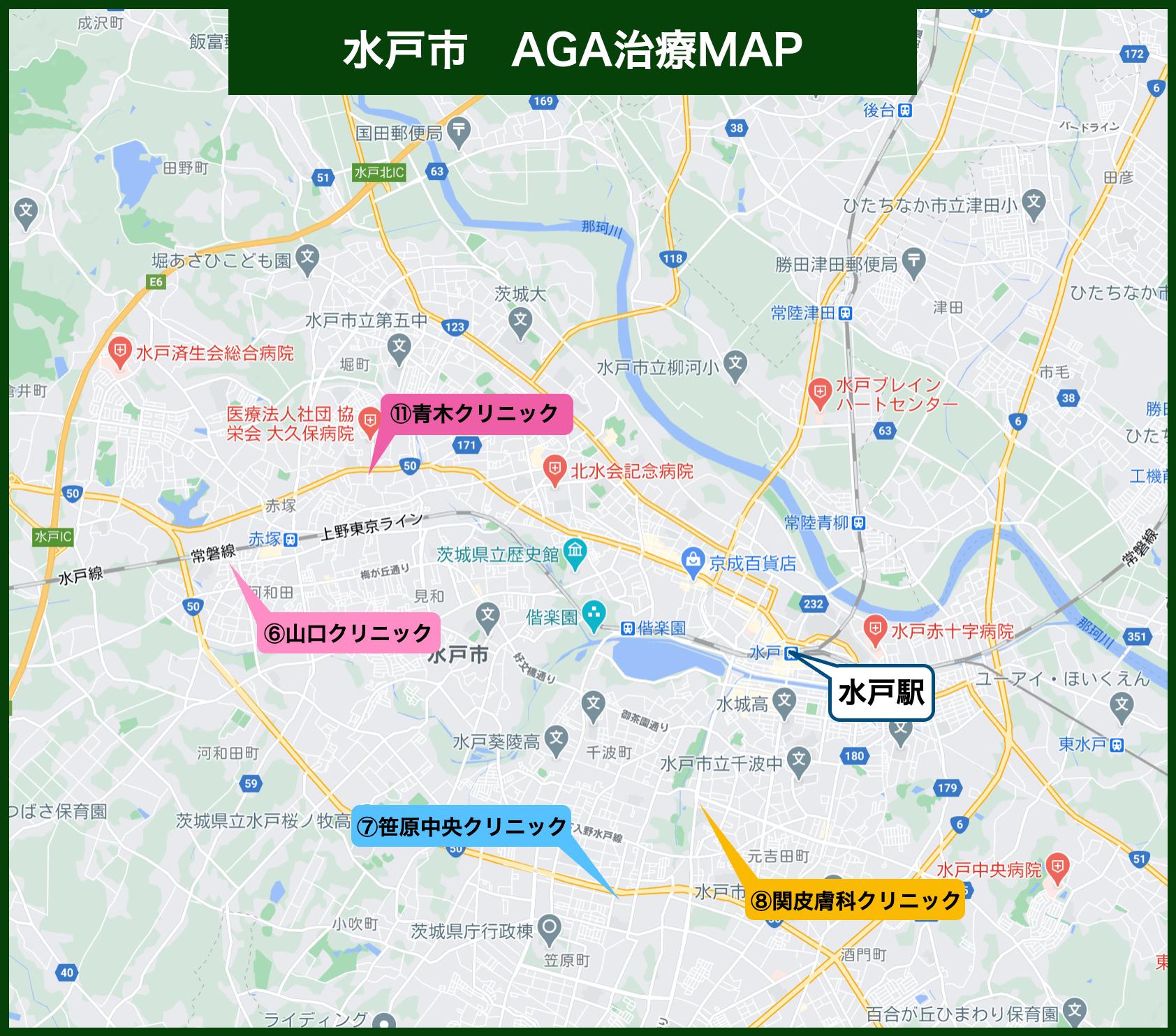 水戸市 AGA治療MAP