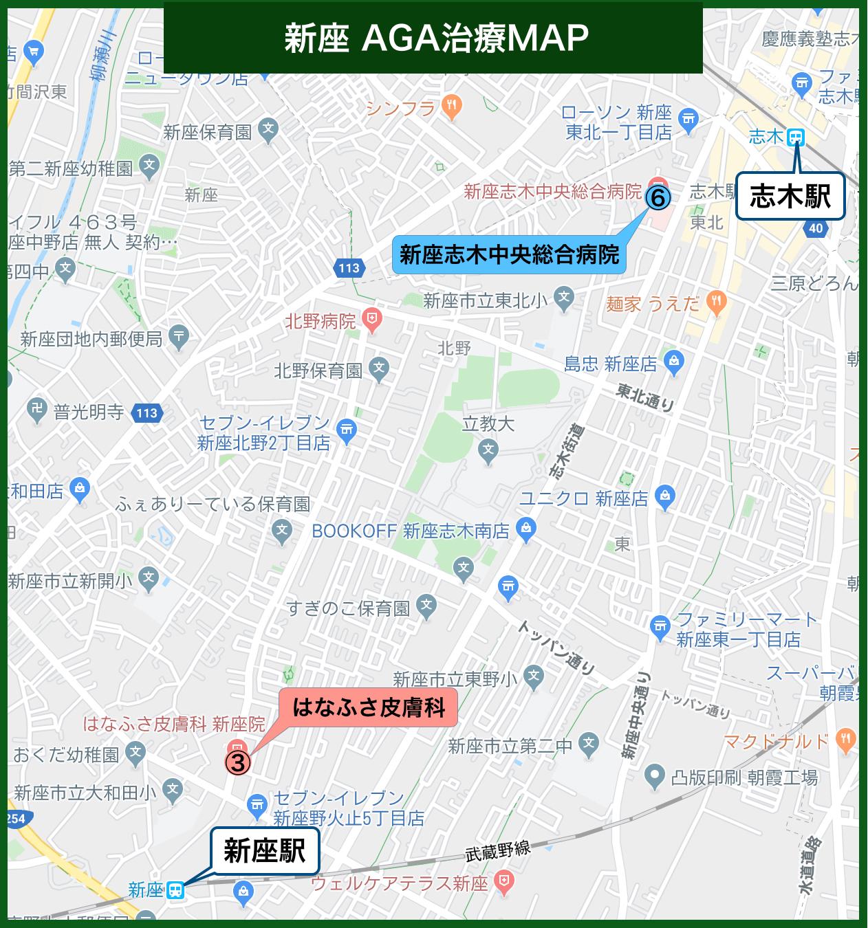 新座 AGA治療MAP