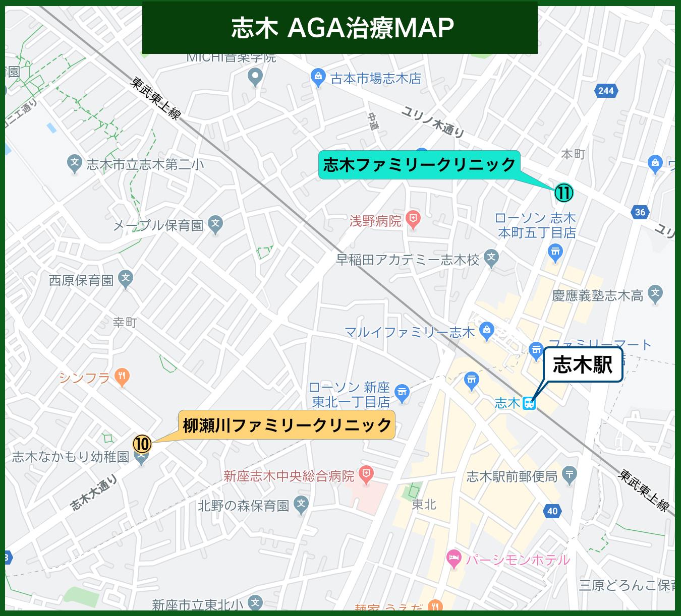 志木 AGA治療MAP