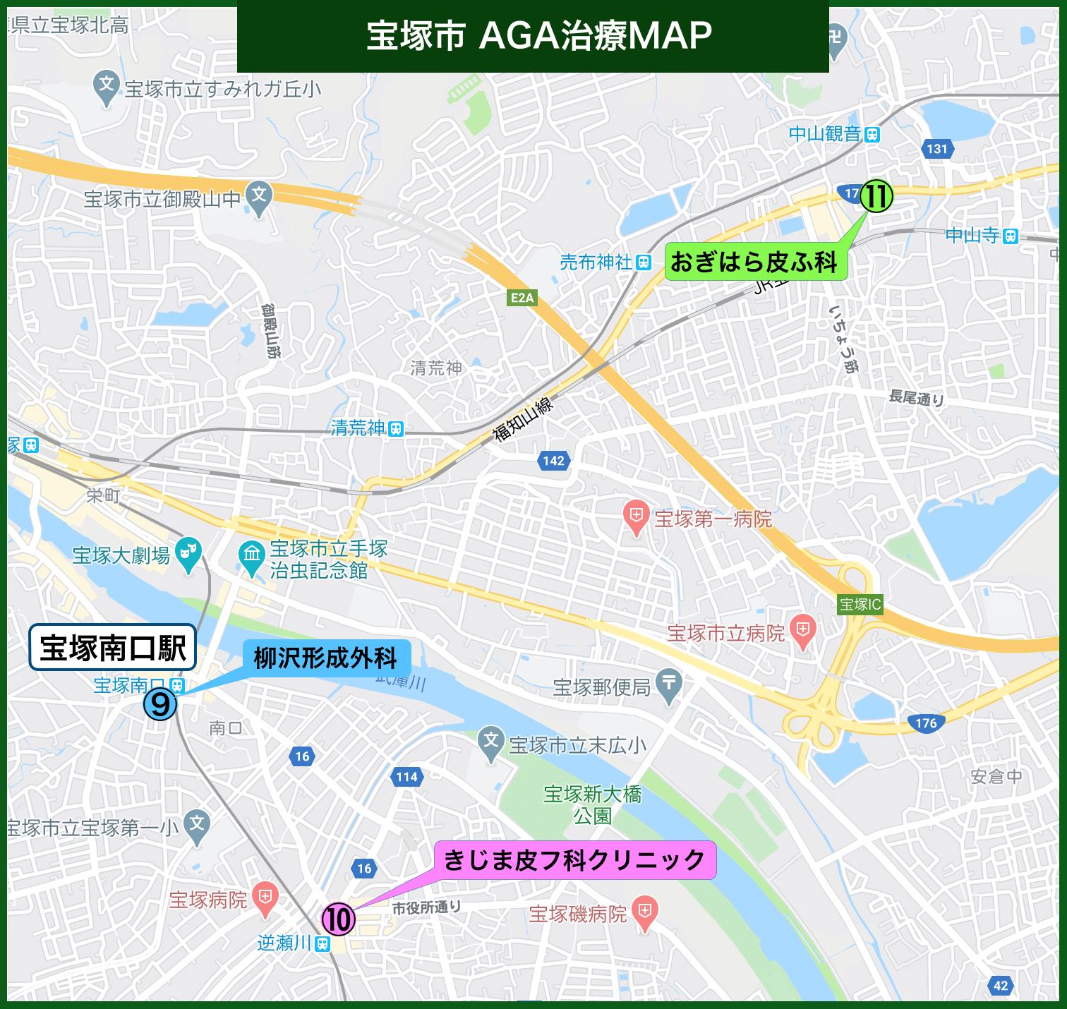 宝塚市 AGA治療MAP