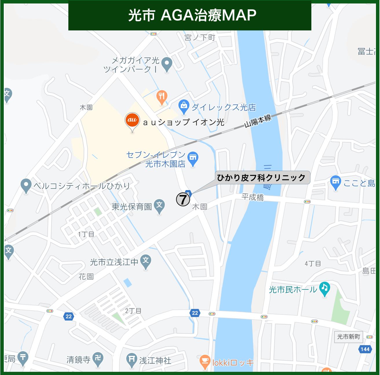 光市 AGA治療MAP