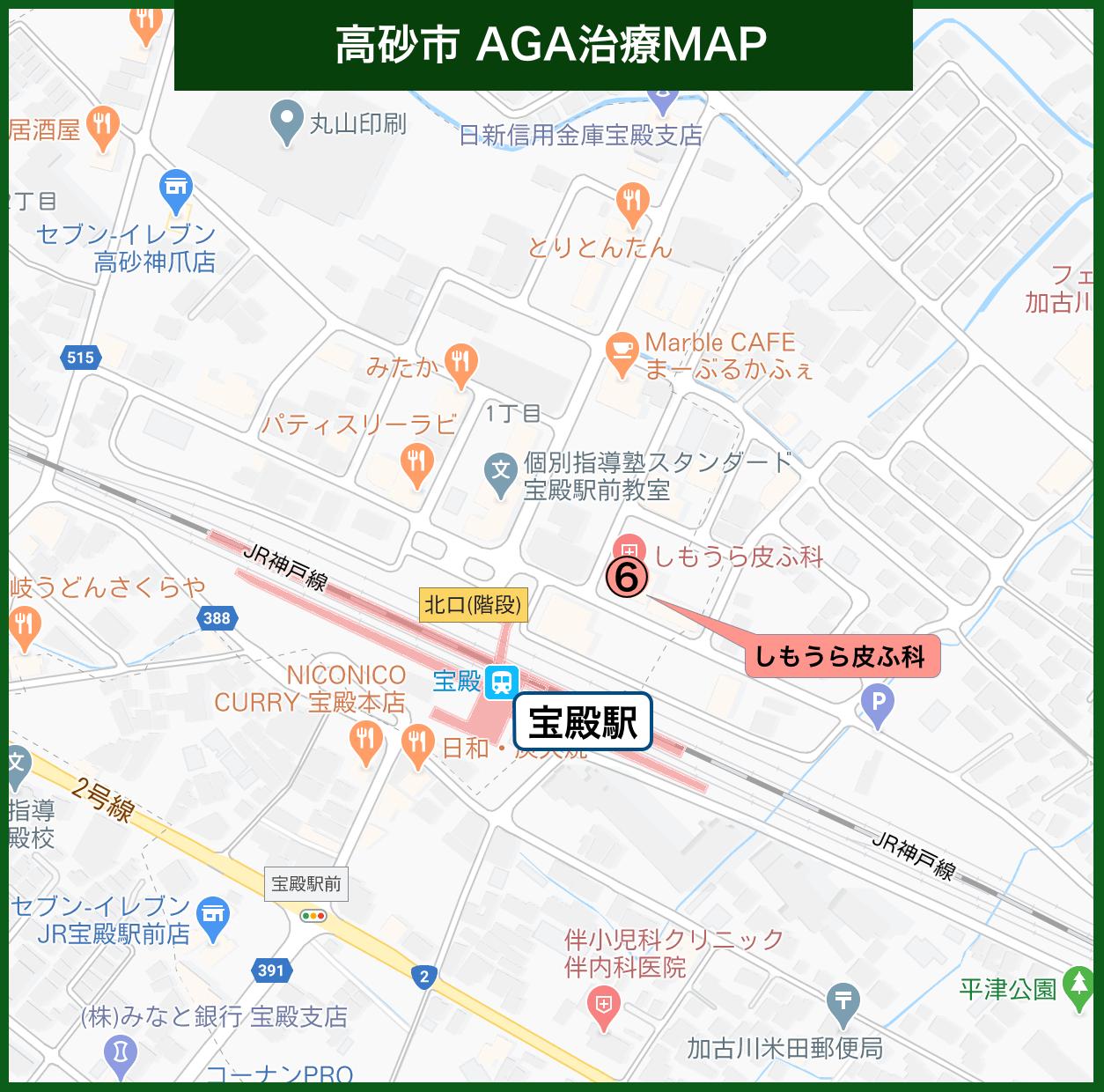 高砂市 AGA治療MAP