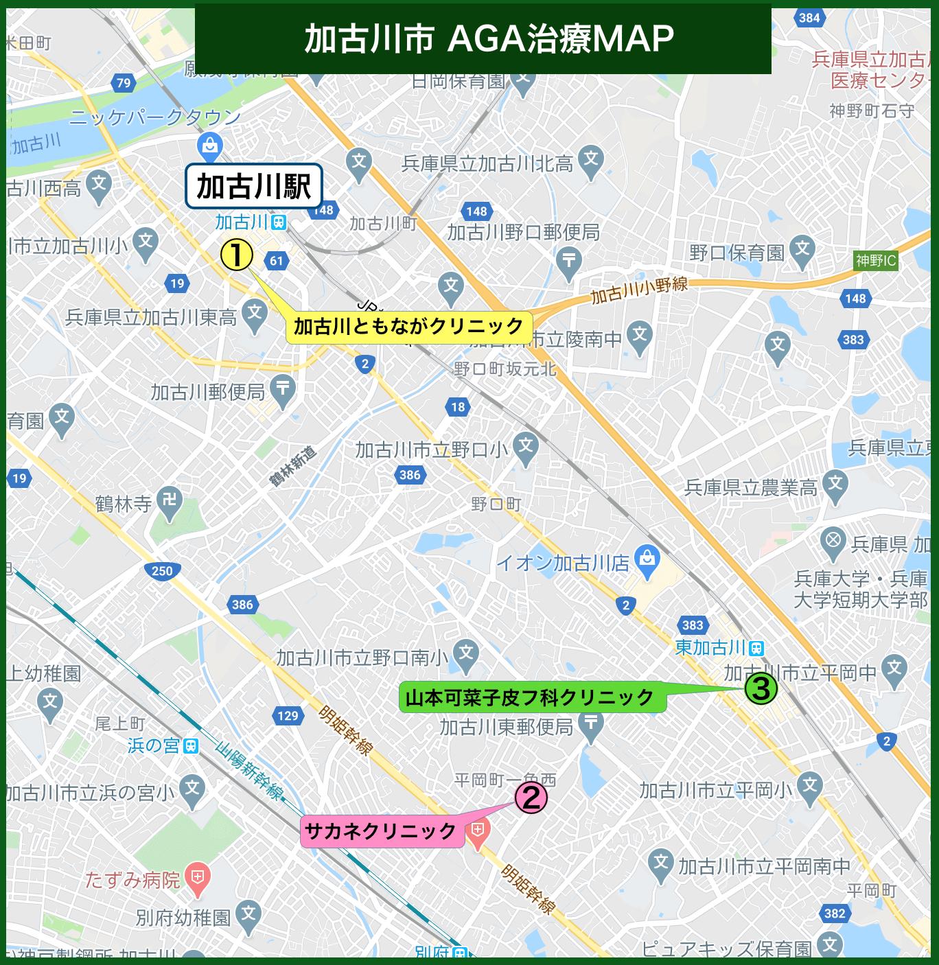 加古川市 AGA治療MAP