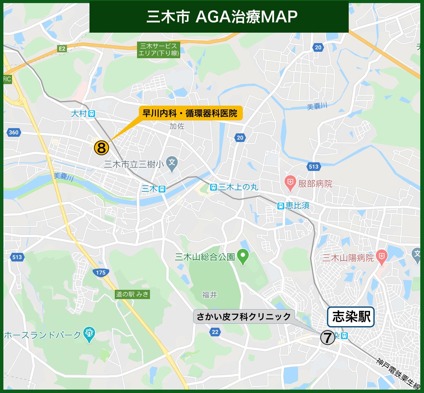 三木市 AGA治療MAP