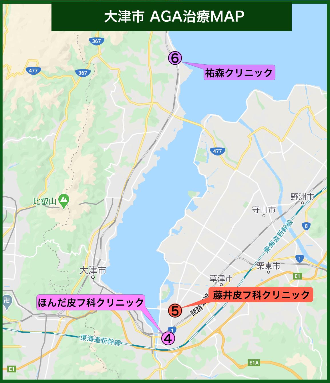 大津市 AGA治療MAP