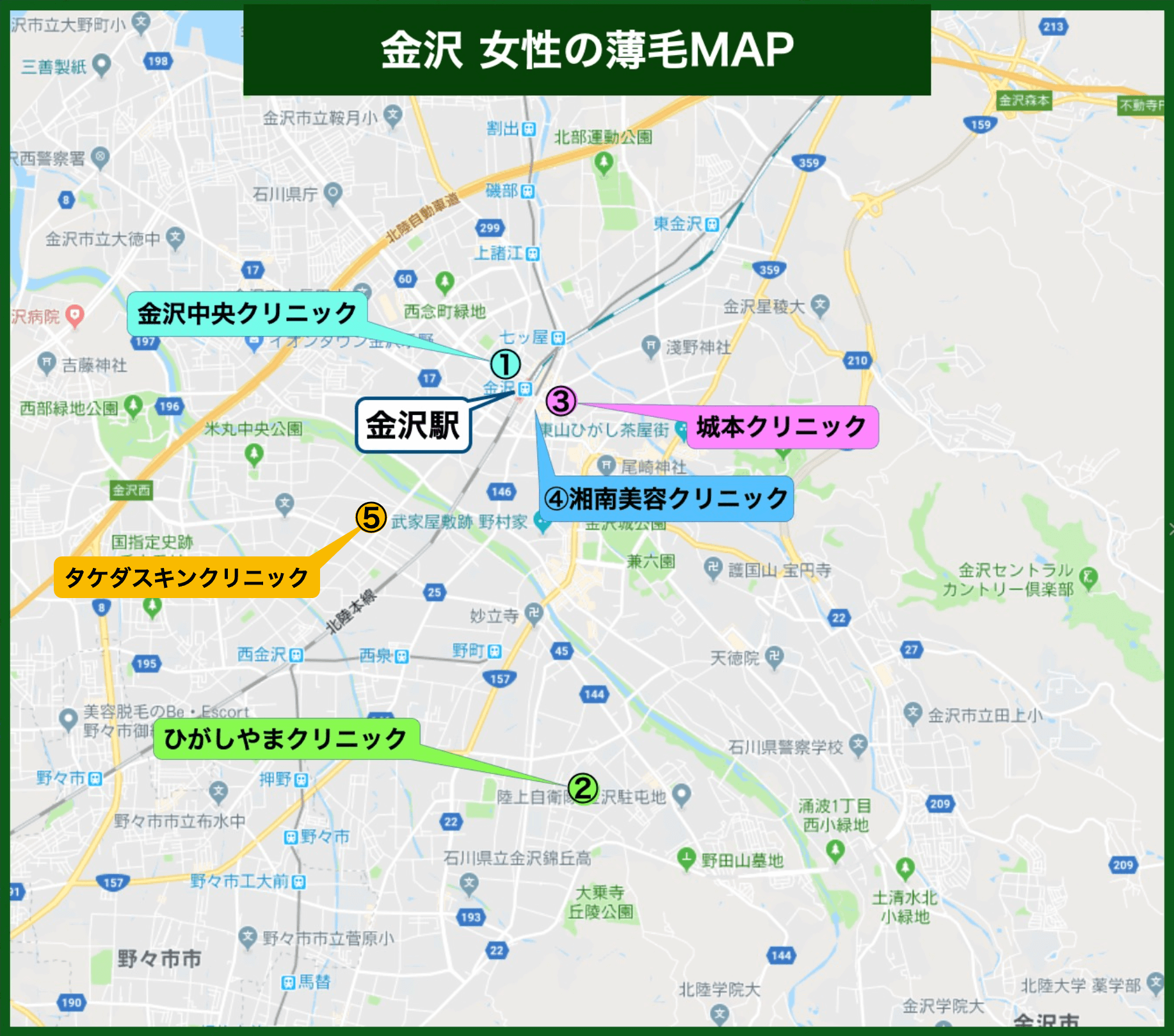 金沢 女性の薄毛MAP