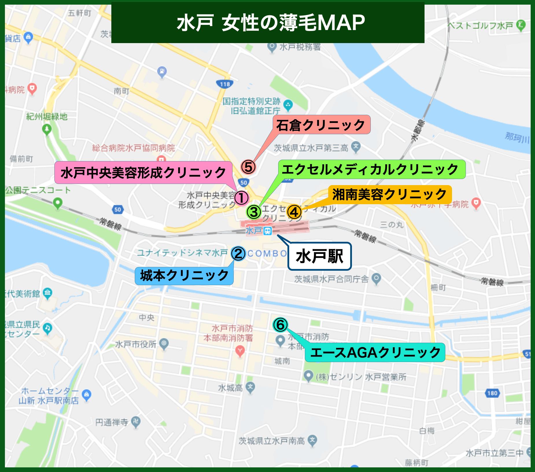 水戸 女性の薄毛MAP