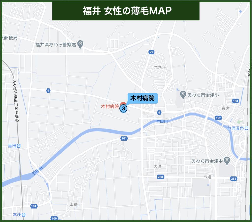 福井女性の薄毛治療MAP