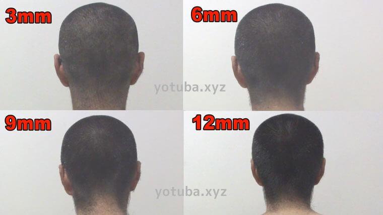 薄毛の方におすすめの坊主の長さの例