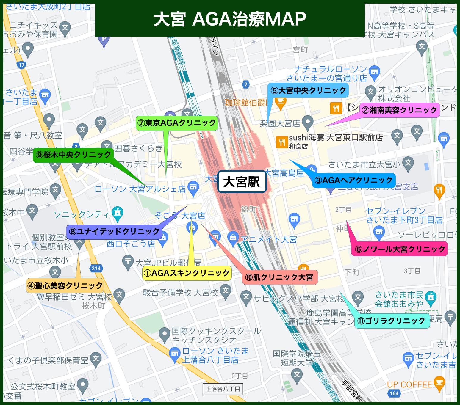 大宮AGA治療MAP
